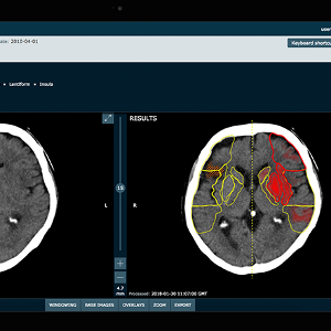 Oxford spinout Brainomix secures £7m investment to tackle strokes with AI