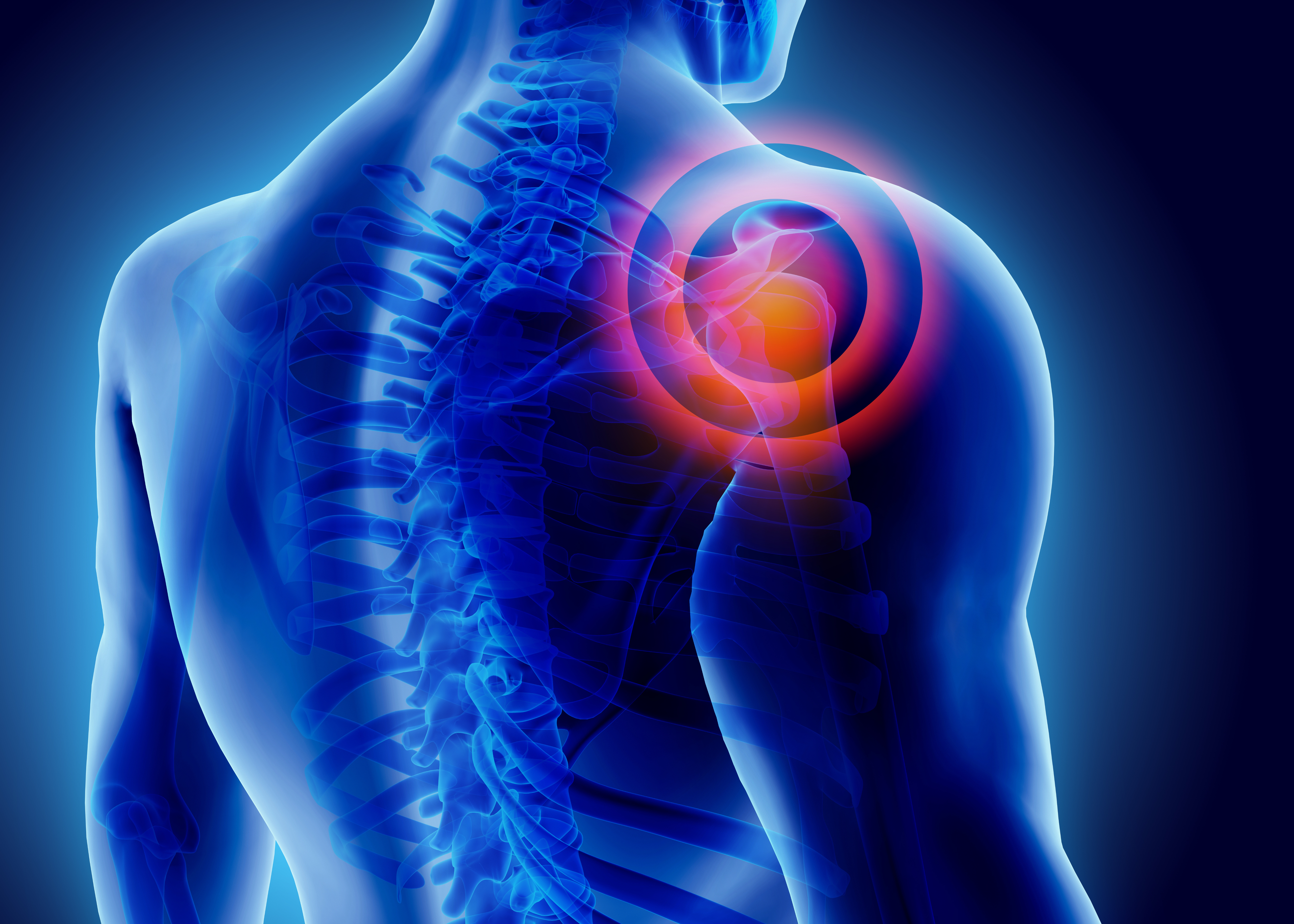 Does common NHS shoulder surgery work?