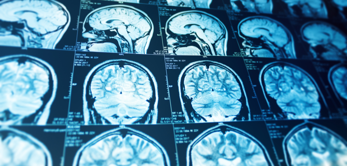 Number of known stroke risk genes tripled