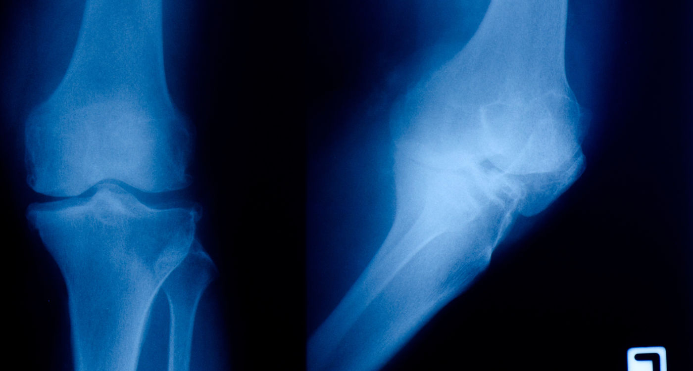 Oxford osteoarthritis patients in new clinical trial