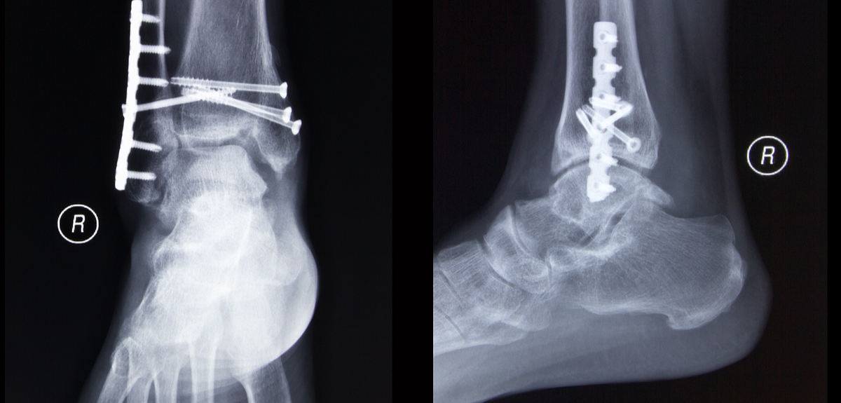 Elderly patients with unstable ankle fractures could avoid surgery