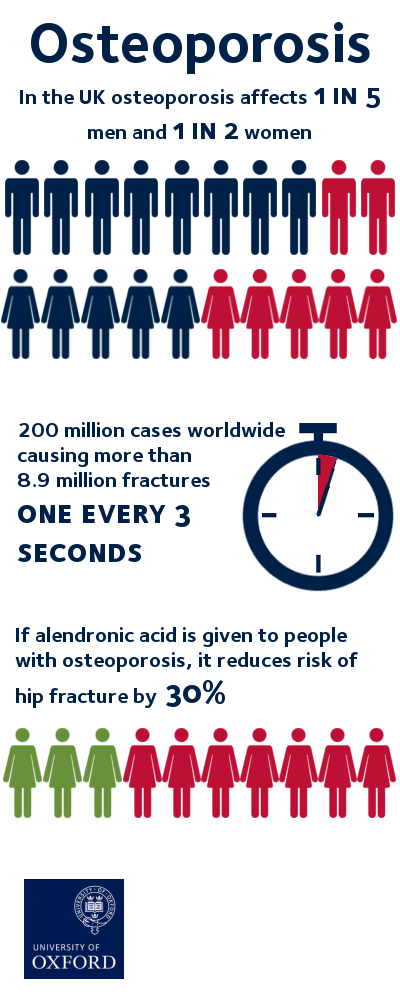 good news for people with osteoporosis | university of oxford, Skeleton