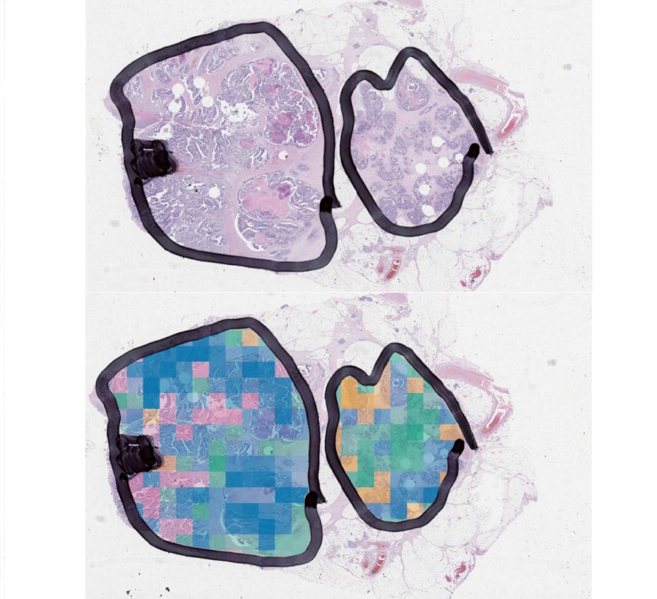 Tumour images under microscope