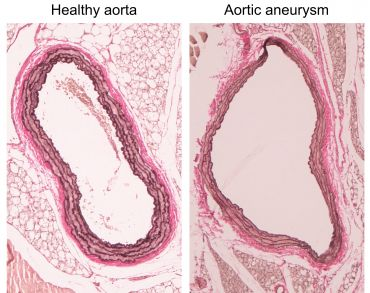Comparing a healthy aorta with what it looks like in the event of an aneurysm