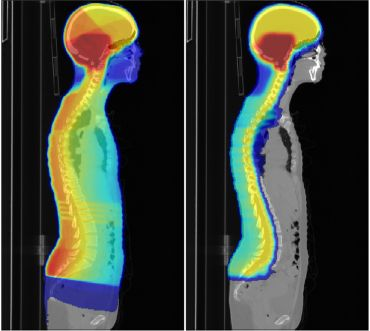 Proton therapy (right) can reduce radiation dose to healthy tissues compared with standard radiotherapy (left).