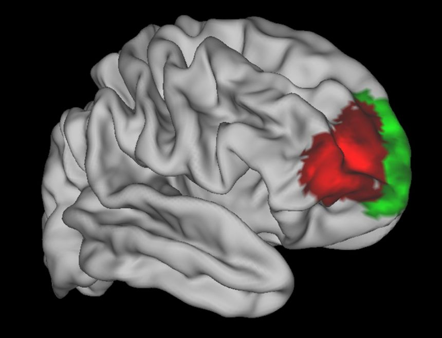 MRI image of the human brain showing (in red) an area that appears to be uniquely human.