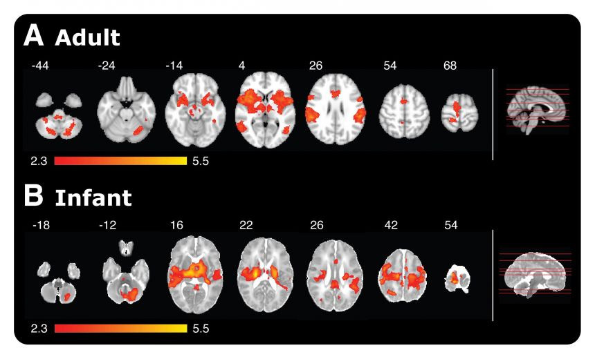 Magnetic Resonance Imaging (MRI) giving a comparison of brain activity in adults and babies when poked with a special retracting rod simulating a sensation of pain.