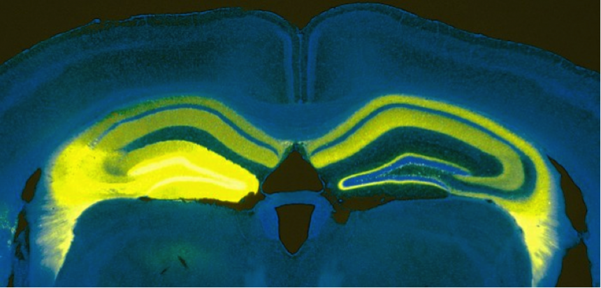 Vertical cut through a mouse brain showing the expression of the light-sensitive protein channelrhodopsin in a part of the hippocampus on the left side of the brain (bright yellow) and the processes sent from this area to parts of the left and right hippo