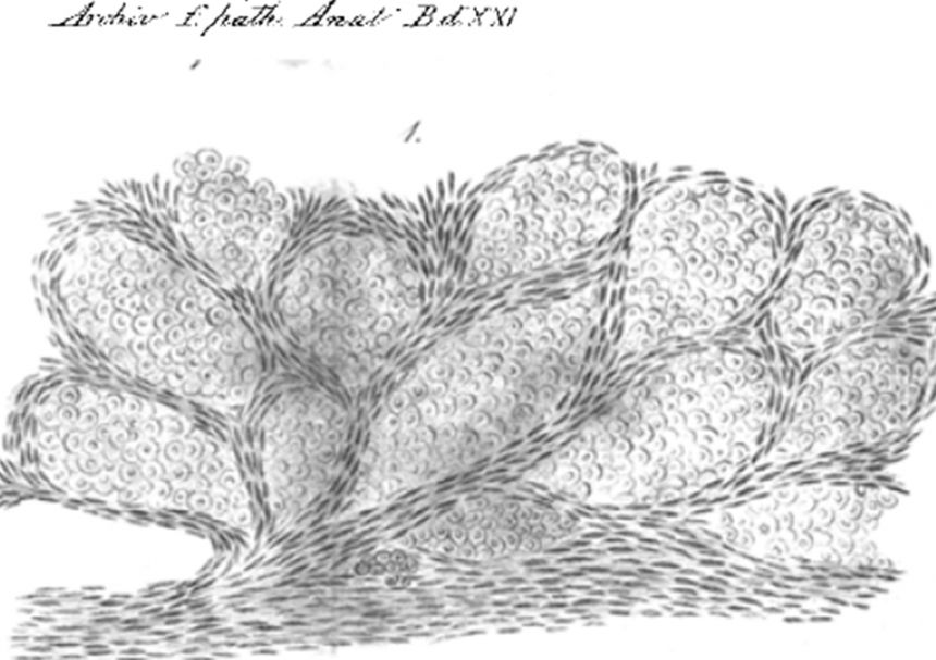 Camera lucida drawing from 1861 showing cancer cells growing inside lung alveolar spaces