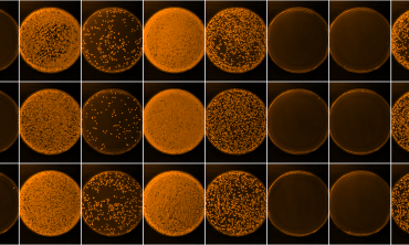 Bacterial colonies growing on agar plates