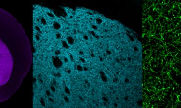 A picture depicting fluorescently labelled dopamine axons in the mouse striatum