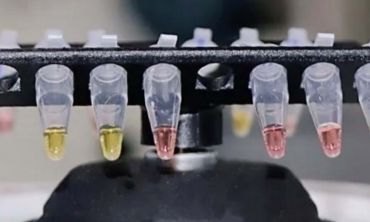 Rapid test showing different colours for positive and negative results