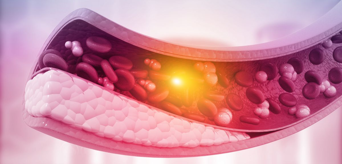 Atherosclerosis, Cholesterol plaque in artery. 3d illustration