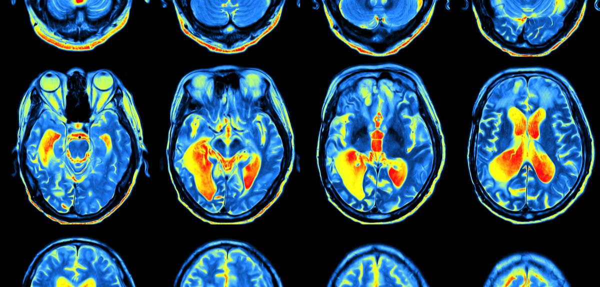 First genetic analysis of brain function and structure using UK Biobank imaging data yields exciting results