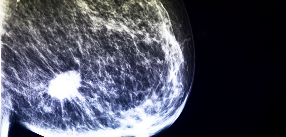 Mammogram showing breast cancer tumour