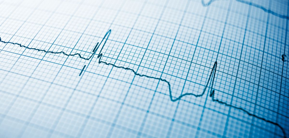 AI technology used to predict heart attacks
