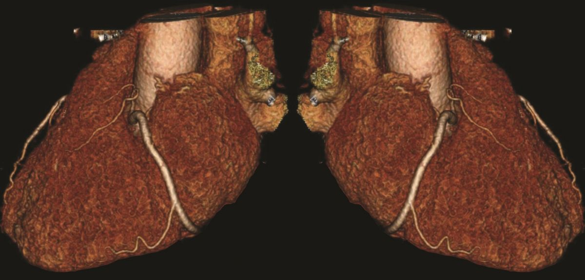 Researchers develop new early warning scan for heart attacks