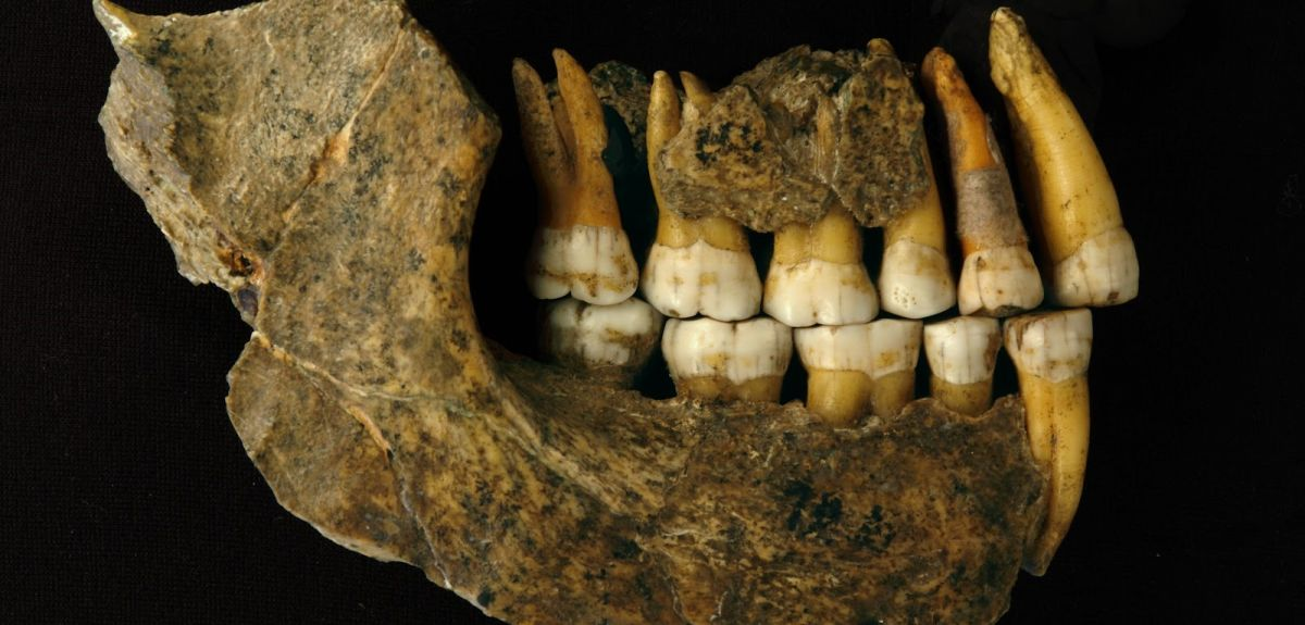 Maxilla and mandible assemblage of a late Neanderthal from Spy cave  Illustration by Patrick Semal © RBINS (co-author on this paper)