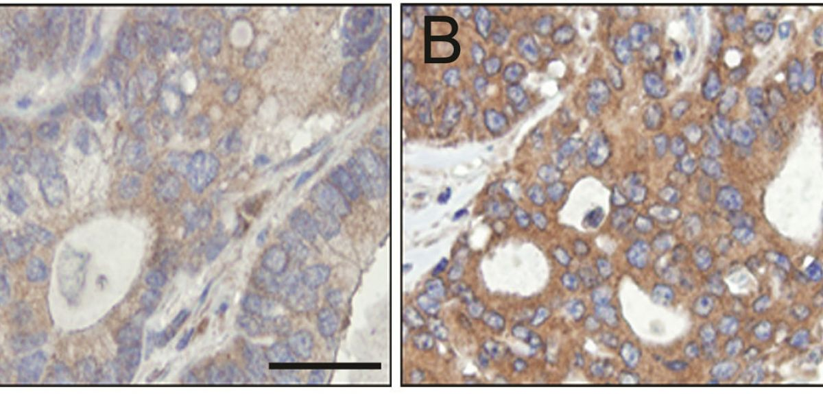 Higher levels of PAT4 (brown staining in B)