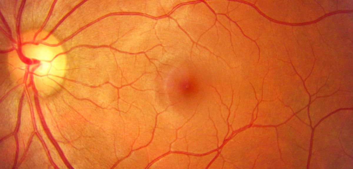New trial for blindness rewrites the genetic code