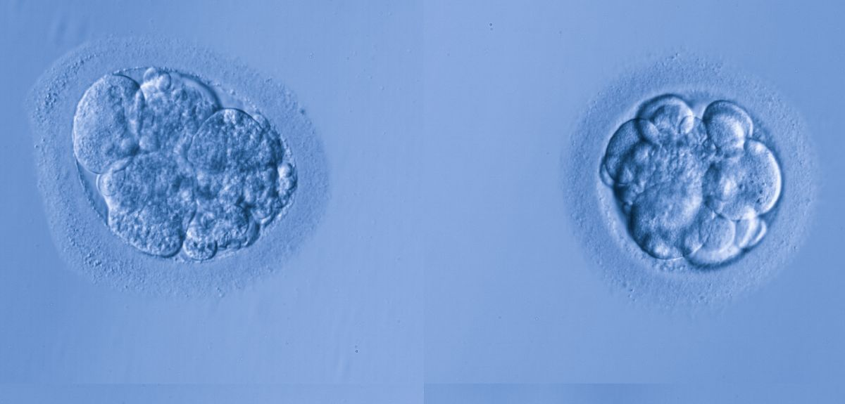 Human egg cells. Female embryos have a higher mortality in the first trimester of pregnancy.