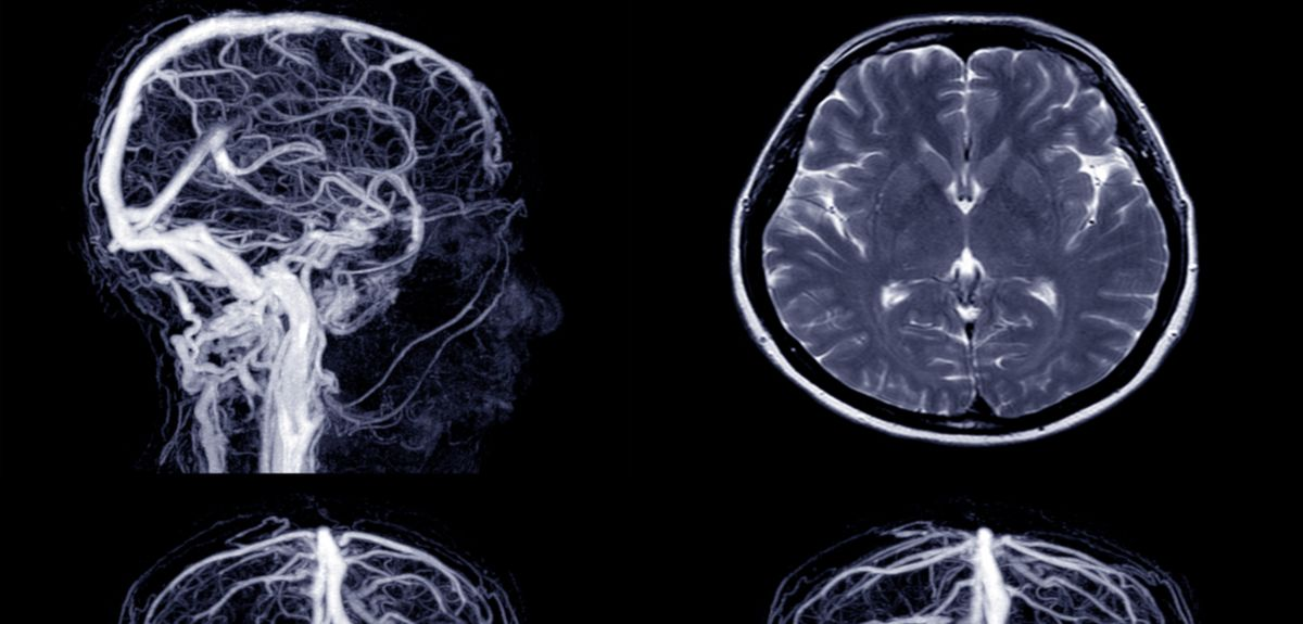 More awareness needed about stroke risk after mini-stroke