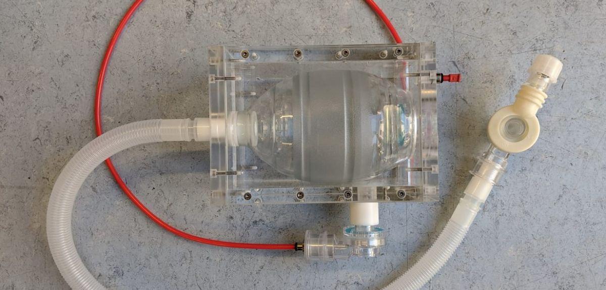 OxVent prototype