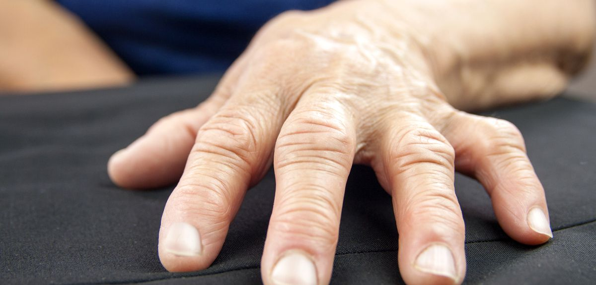 A woman's hand deformed by Rheumatoid Arthritis