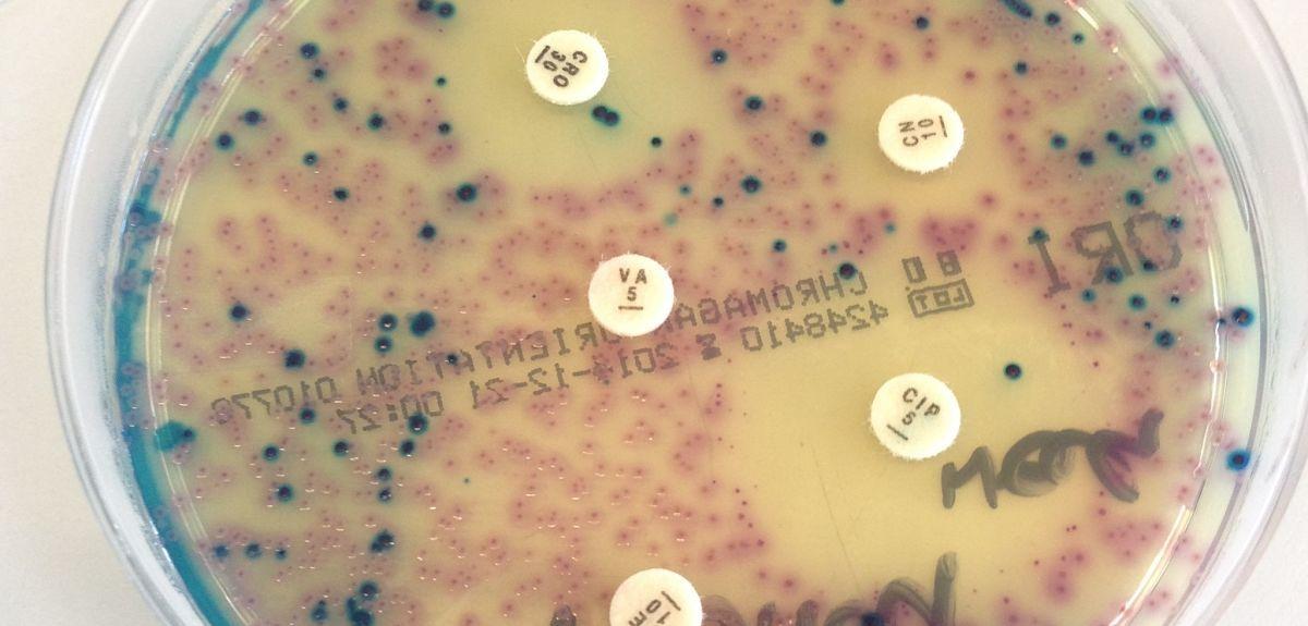 Bacterial culture with antibiotic discs