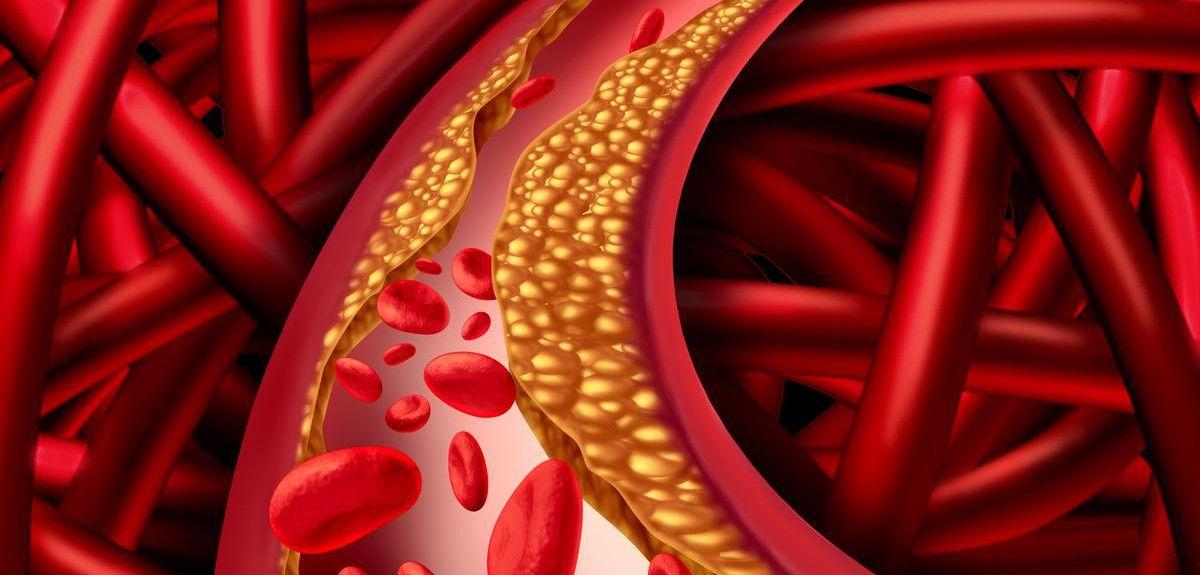 Atherosclerosis - blocked artery