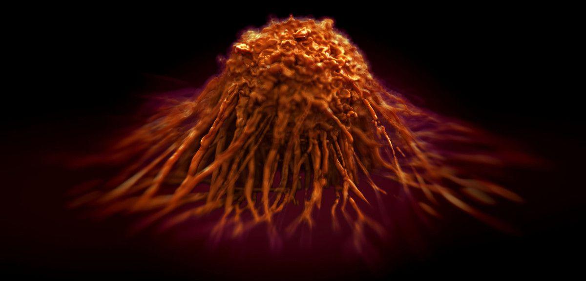 Cancerous tumour