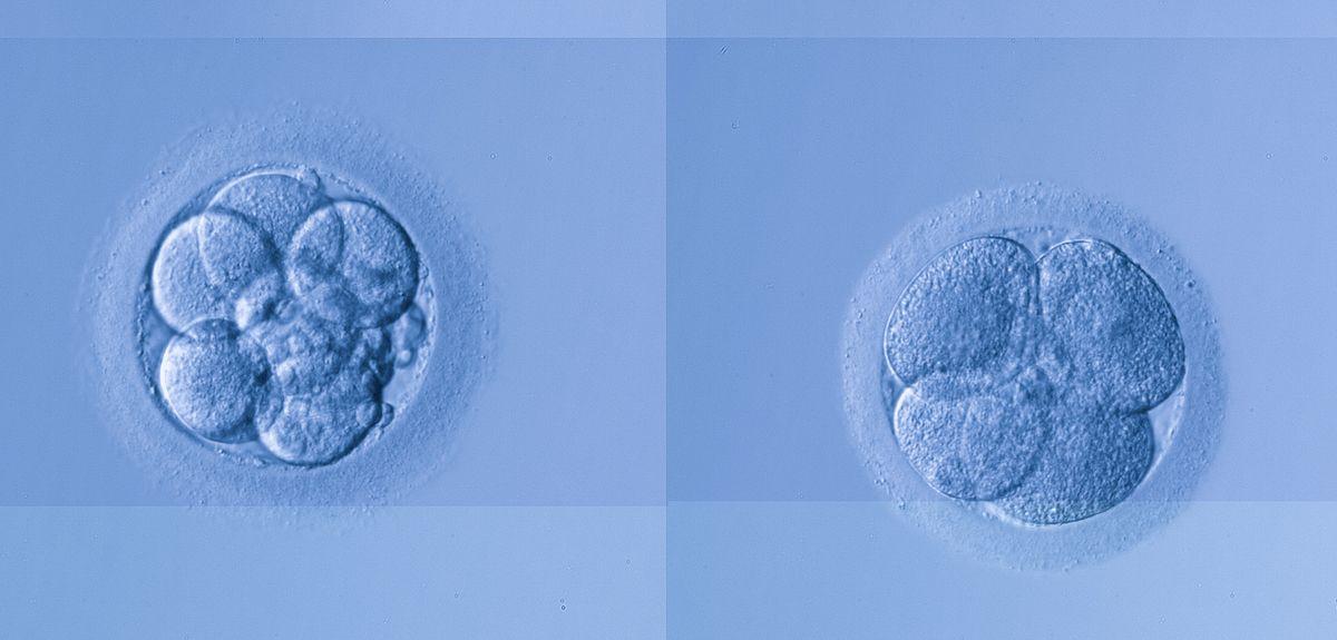 Early stage human embryo