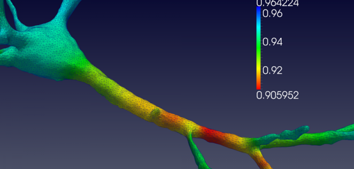Numerical model of a neuron under mechanical loading
