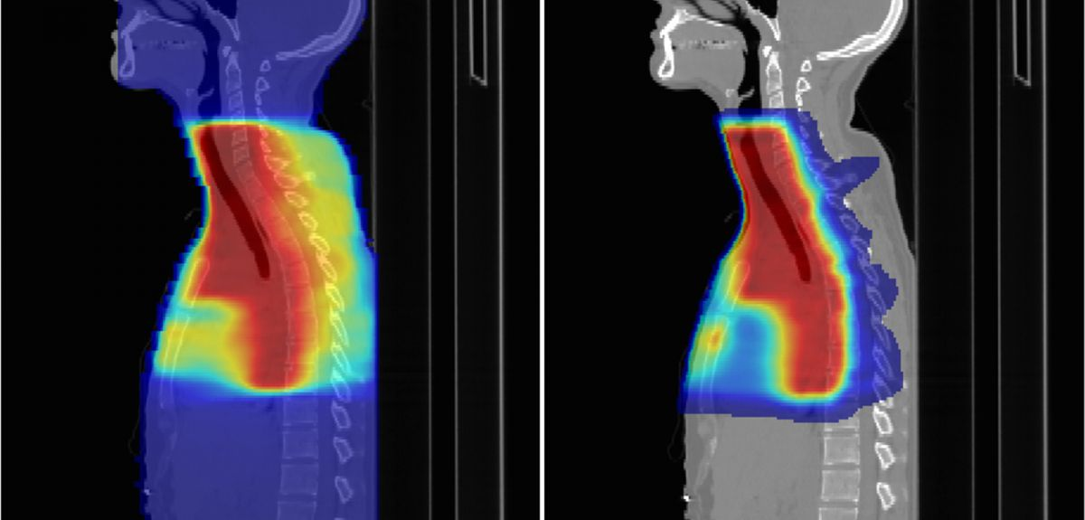 The Precision Cancer Medicine Institute will carry out research on proton beam therapy