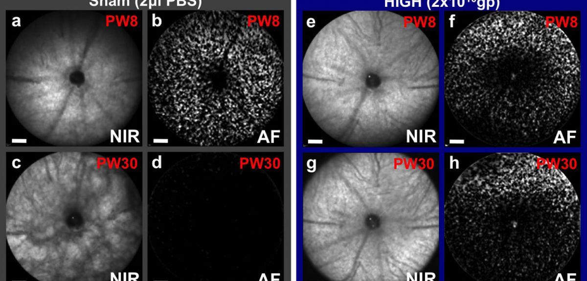 Gene therapy for retinitis pigmentosa