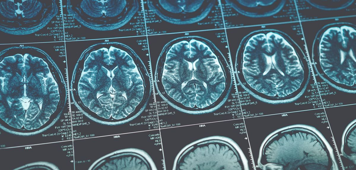 Oxford spinout to diagnose Alzheimer's Disease from MRI scans