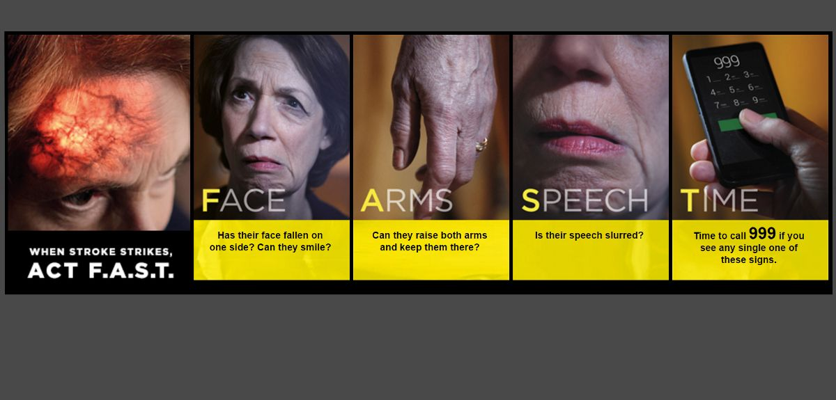 NHS Act FAST campaign on recognising stroke symptoms