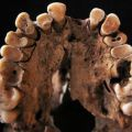 Tooth decay in a young adult hunter-gatherer from Taforalt, Morocco.